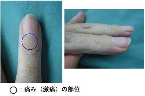 爪の強い痛み(グロムス腫瘍)について