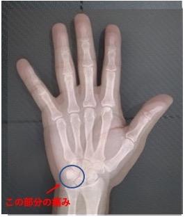 手のひらの痛み(豆状三角関節障害とは?)