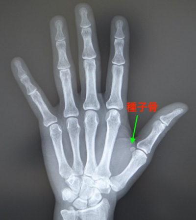 母指の痛みについて(種子骨障害とは?)