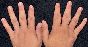指の第2関節の肥厚  pachydermodactylyとは? (日本語に出来ない病名)
